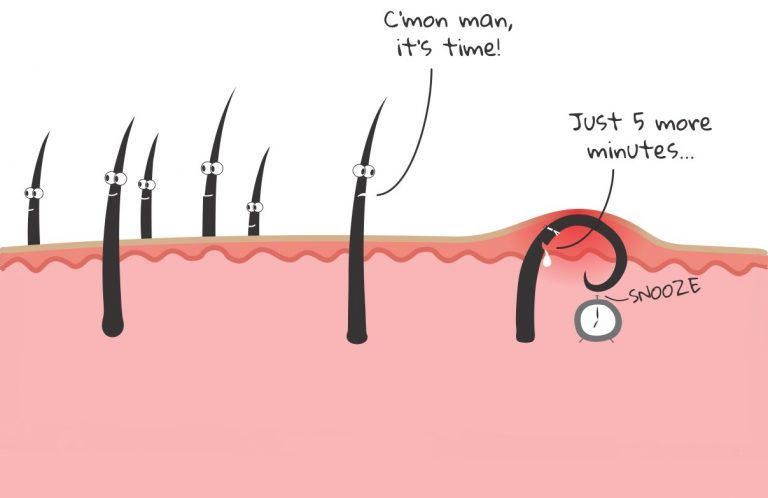 The Ingrown Hair: An epic tale of escape from the Unknown